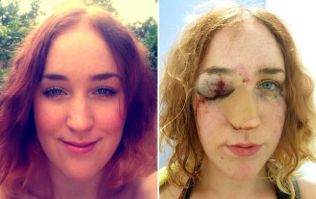 """Woman Shares Selfie After Being Punched In The Face For """"Telling Man To Stop Groping Her"""""""