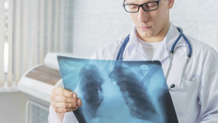 Survey Reveals That One In Every Two People Nationwide Is Affected By Lung Disease