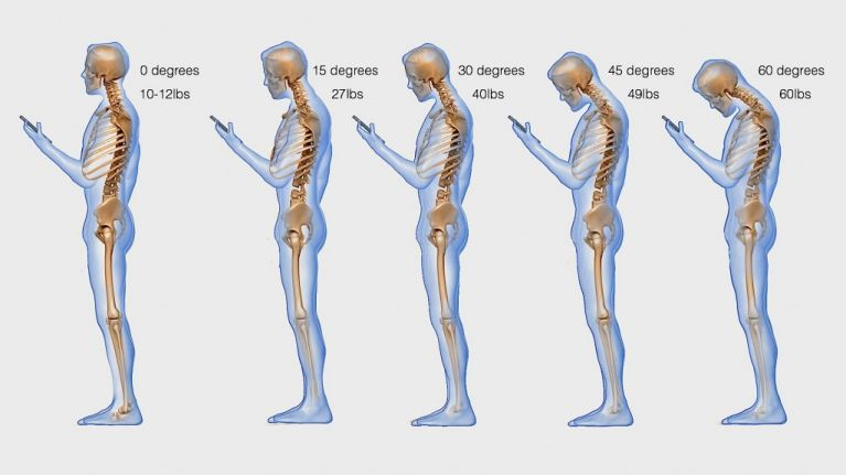 This is What Your Phone Addiction is Doing to Your Spine