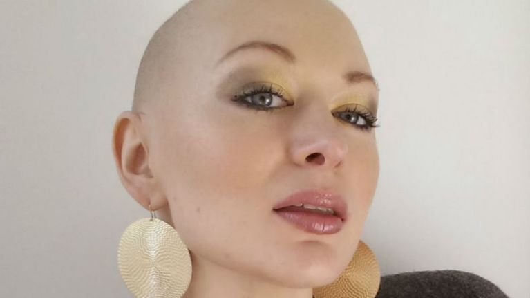 Reader Eimear Coghlan Shares Her Journey with Cancer, Losing Her Hair And Embracing Being AmazeBald