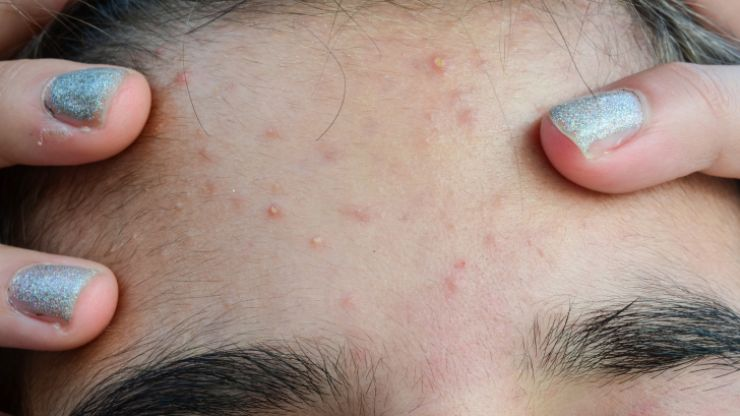 Research establishes a surprising fact for what causes acne