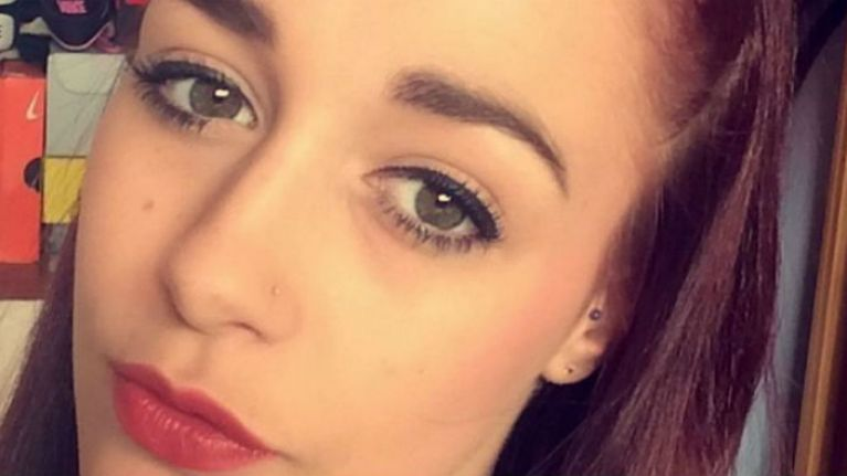 PIC: Teen Suffers Horrific Allergic Reaction To Eyebrow Threading