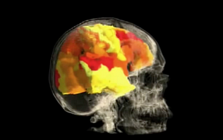 This is what your brain looks like when you orgasm