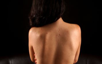 Ten things you need to know about psoriasis
