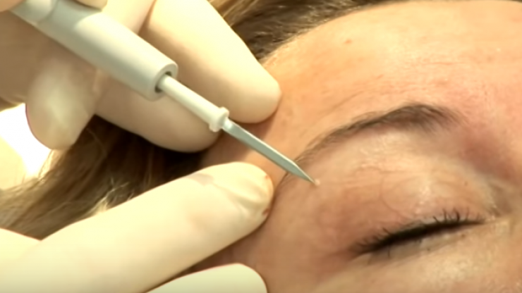 Here's why you may have white lumps around your eyes