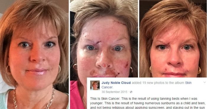 Pic Woman Shows Graphic Images Of Her Skin Cancer As Caution To Sun Worshipers Her Ie