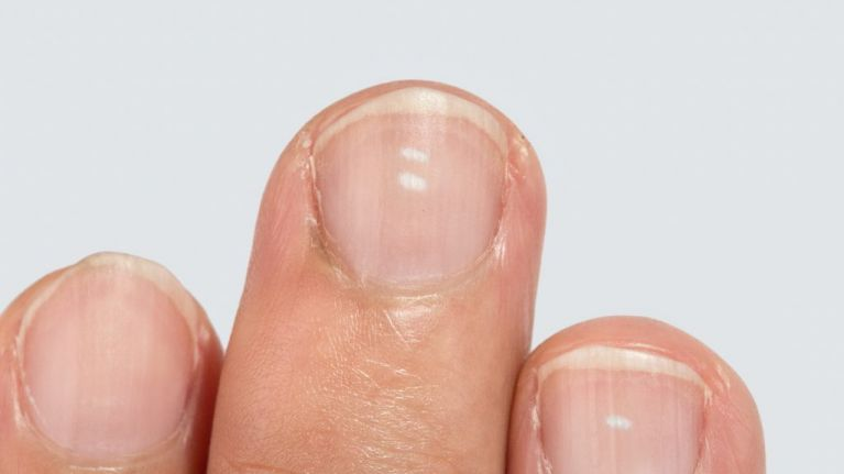 Here are the reasons why you may have white marks on your nails