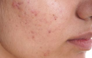 What is makeup-induced acne? Plus 5 simple ways to tackle it
