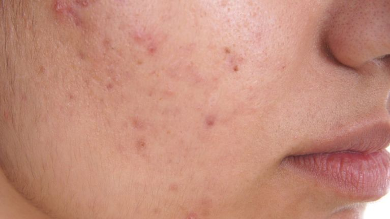 People are swearing by this pharmacy-stocked acne treatment