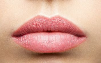 The one beauty hack to FINALLY heal dry chapped lips