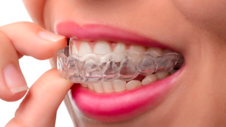 Why you should be wearing your retainer for the rest of your life