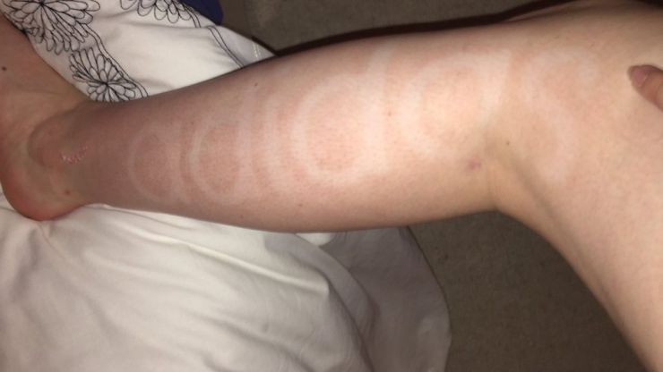 This woman applied fake tan before the gym and the aftermath is hilarious