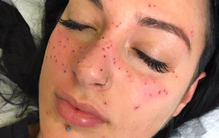 Tattooing freckles of your astrology sign is now a thing and we're fairly confused