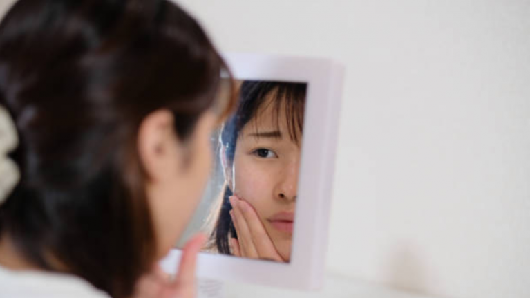 What you need to know about acne and the best ways to handle it