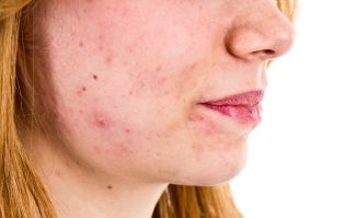 We are intrigued! The €5 product that's said to work wonders for acne
