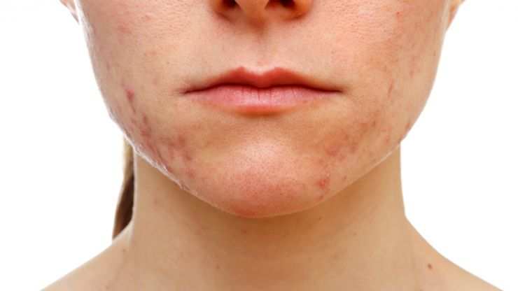This woman banished her acne in 3 weeks using OIL, and we're impressed
