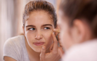 This is how many of us suffered with bad skin as teenagers