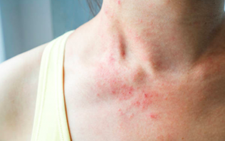 Suffering from eczema? Here are 6 ways to naturally soothe your skin