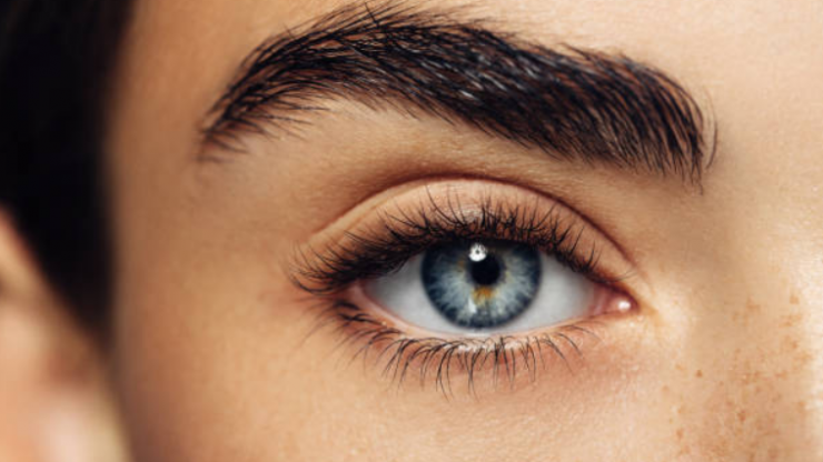 Eyebrow dandruff is a thing and this is how you can get rid of it