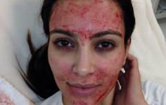 Two people test positive for HIV after having vampire facials