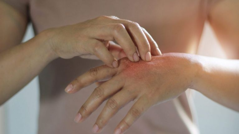 Psoriasis Awareness Month: Top 10 questions about the skin condition answered