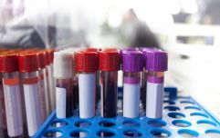 Blood tests could detect ovarian cancer two years earlier, says study