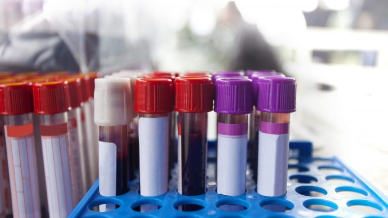 More Testing Less Play Study Finds >> Blood Tests Could Detect Ovarian Cancer Two Years Earlier Says