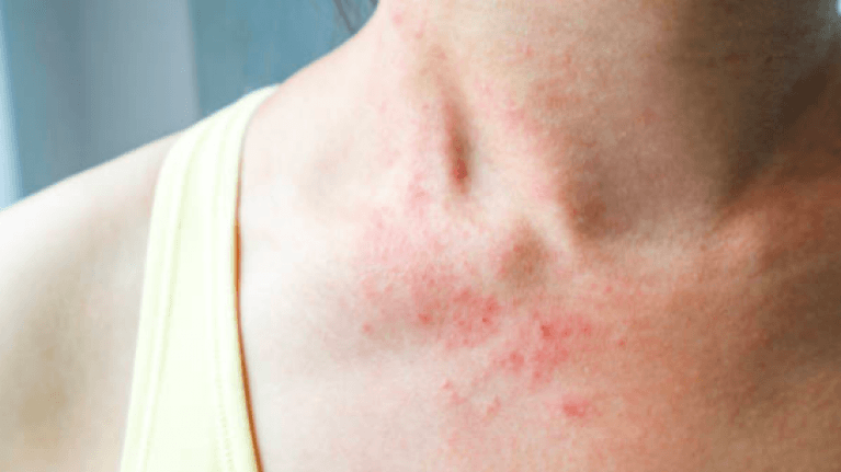 September is Eczema Awareness Month, and here's what you should know