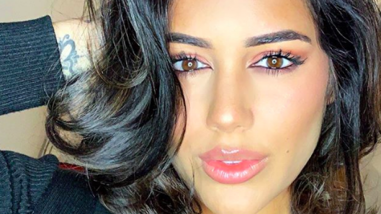 Love Island's Malin Andersson posts harrowing image of bruise to 'raise awareness for domestic violence'