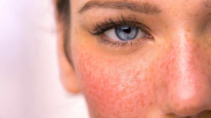 Rosacea awareness month: 3 skincare products many rosacea sufferers swear by