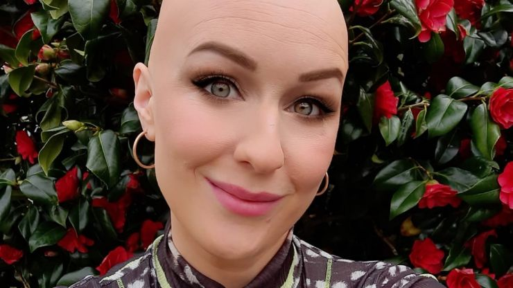 """""""It changed my relationship with beauty"""": Journalist Mary Cate Smith discusses her alopecia journey"""