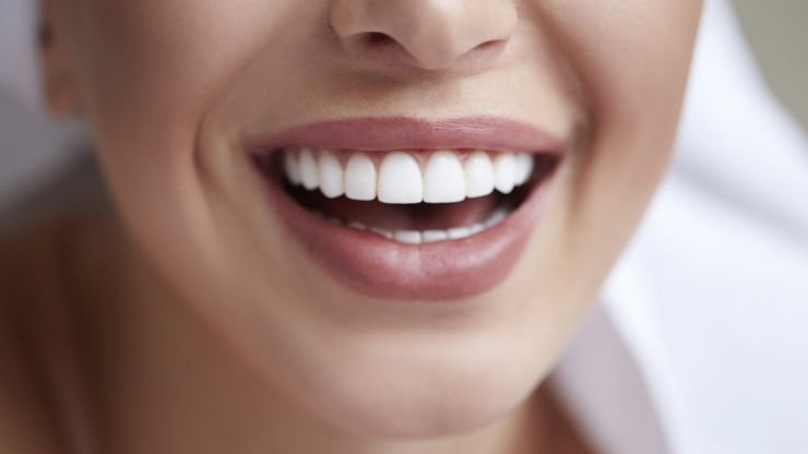 Always wanted a perfect smile? Here's how to get straight teeth at home in lockdown