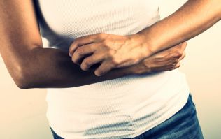 Psoriasis - Is diet part of the problem?