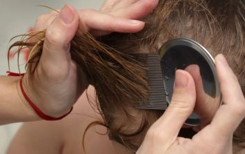 Headlice: what to do when critters invade your child's scalp
