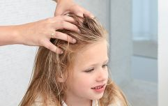 Parenting abroad: THIS is how the Dutch deal with head lice (and it's brilliantly simple)