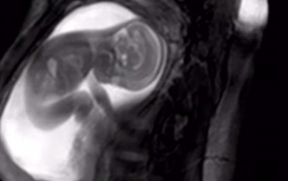 New MRI scan lets parents see their babies in AMAZING detail inside the womb