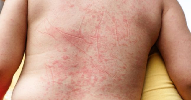 irish parents advised to be vigilant for signs of scarlet fever, Human Body