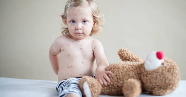 HSE on high alert after measles outbreak discovered in Dublin