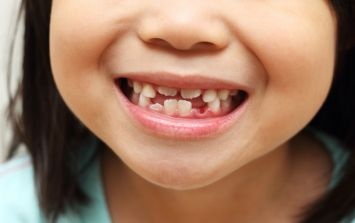 Chemical exposure in pregnancy shows up in baby teeth (and there is a scary link to autism too)