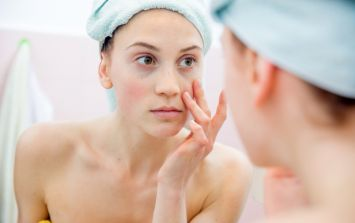 This is one cure for dark circles under your eyes that we can all get behind