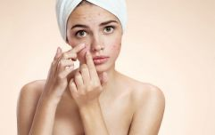 The simple nightly skincare habit that can result in acne breakouts