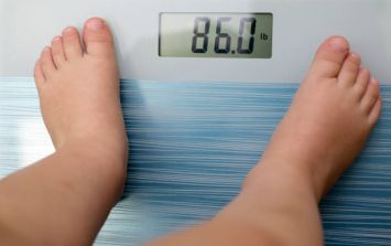 Obese children likely to die 20 years before healthy children