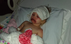 One toddler ended up in hospital covered in blisters after using kids makeup