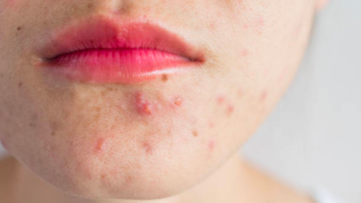 6 steps for treating acne in adulthood, according to a skin therapist