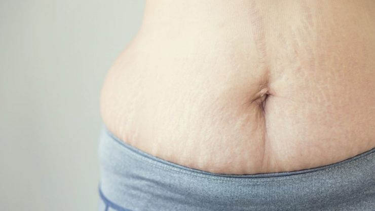 In a world of perfection here's to the mums with stretch marks and mum tums