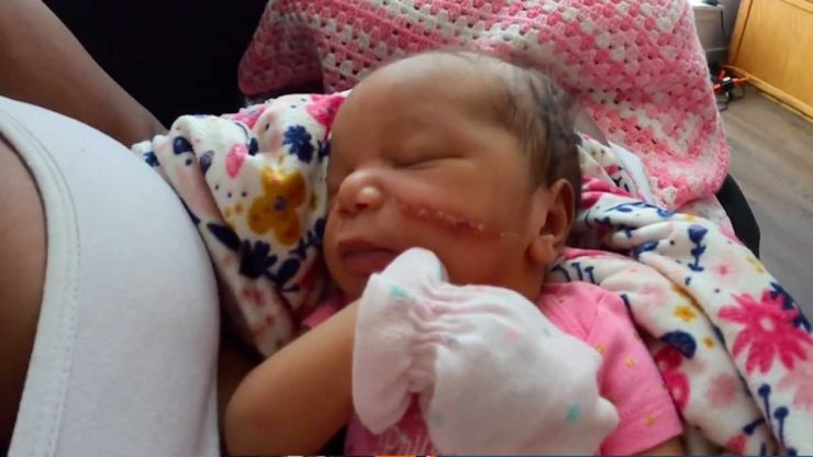 """Newborn needs 13 stitches on her face after being """"sliced"""" during emergency C-section"""