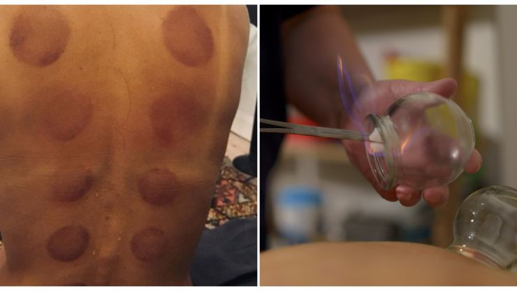 I tried the cupping therapy popular with celebrities  – and here is what happened