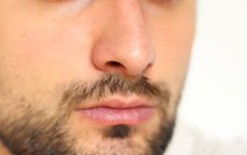 The surprising reason you may be suffering from chapped lips