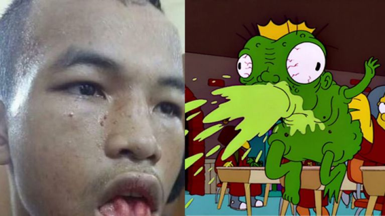 [GRAPHIC] Muay Thai injury will make you feel silly for ever believing that you've actually had a cut lip