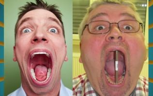 German bloke wins the record for the world's biggest mouth gape